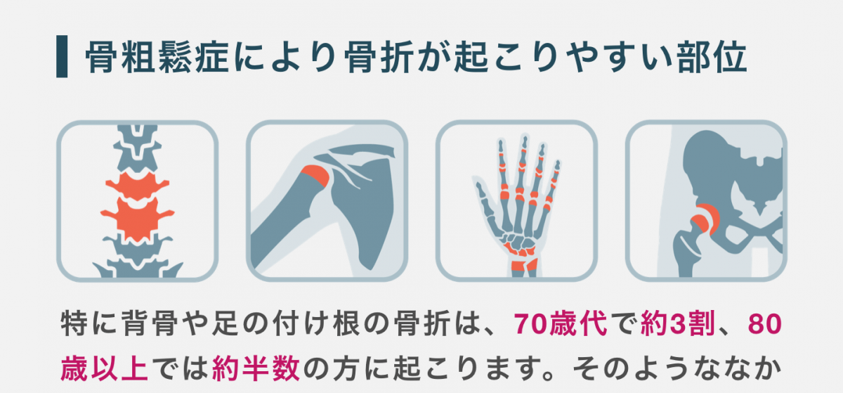 骨粗鬆症で骨折が起こりやすい部位の図