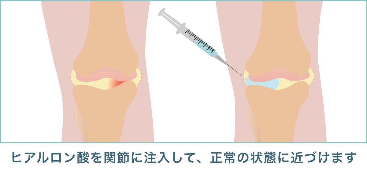 変形性膝関節症の注射