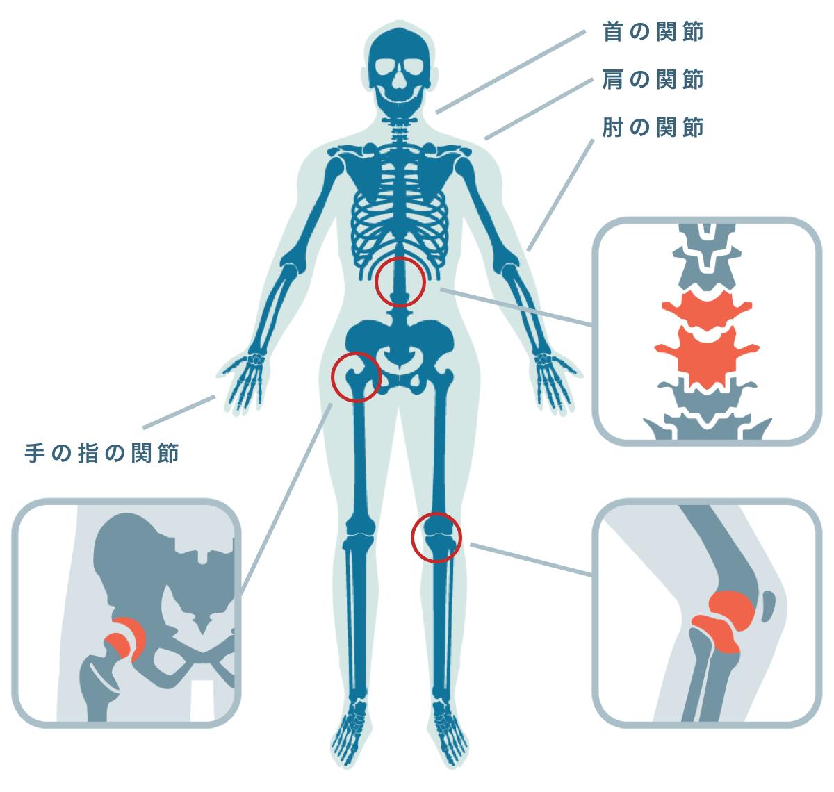 変形性関節症が起こりやすい関節